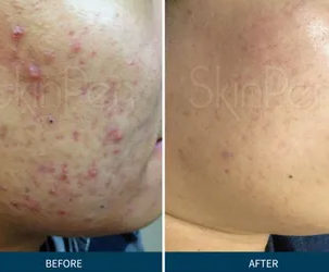 Microneedling : Side Effects and Post Care